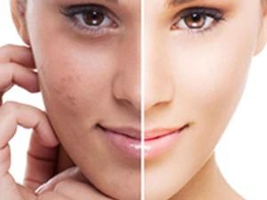 3 этап: Уход за кожей после лечения прыщей